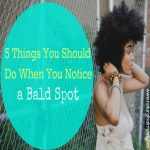 5 Things You Should Do If You Notice A Bald Spot