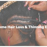 Hair Loss in Women: 3 Causes of Extreme Hair Shedding & Thinning Edges